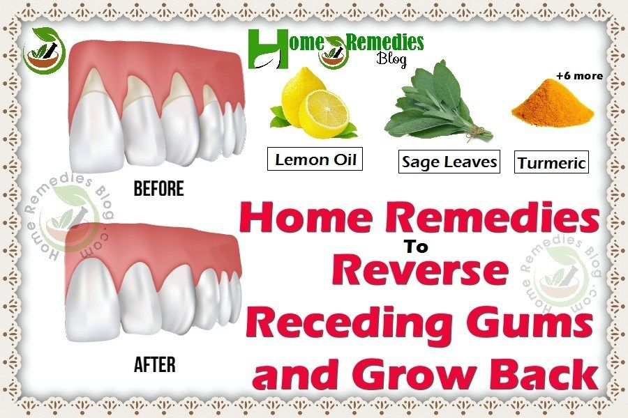 9 home remedies to reverse receding gums grow it back