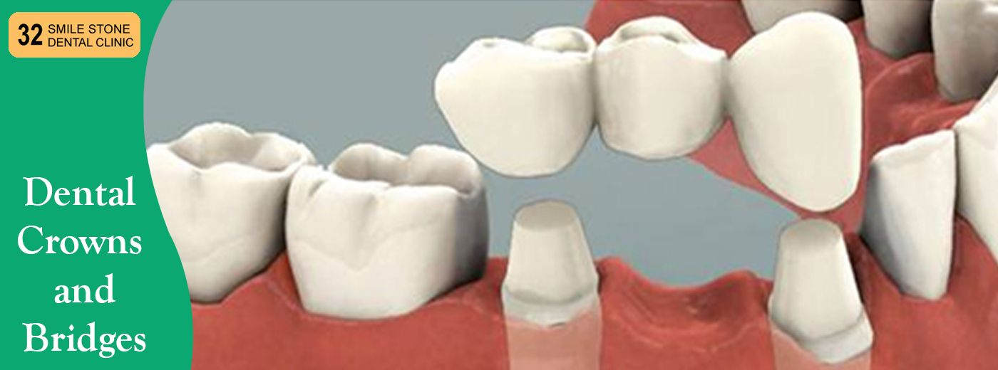 Dental Crowns And Bridges There Are Mainly 3 Types Of Dental Crown Materials All Ceramic Porcelain Porcelain Fused To Metal Dental Bridge Dental Dentistry