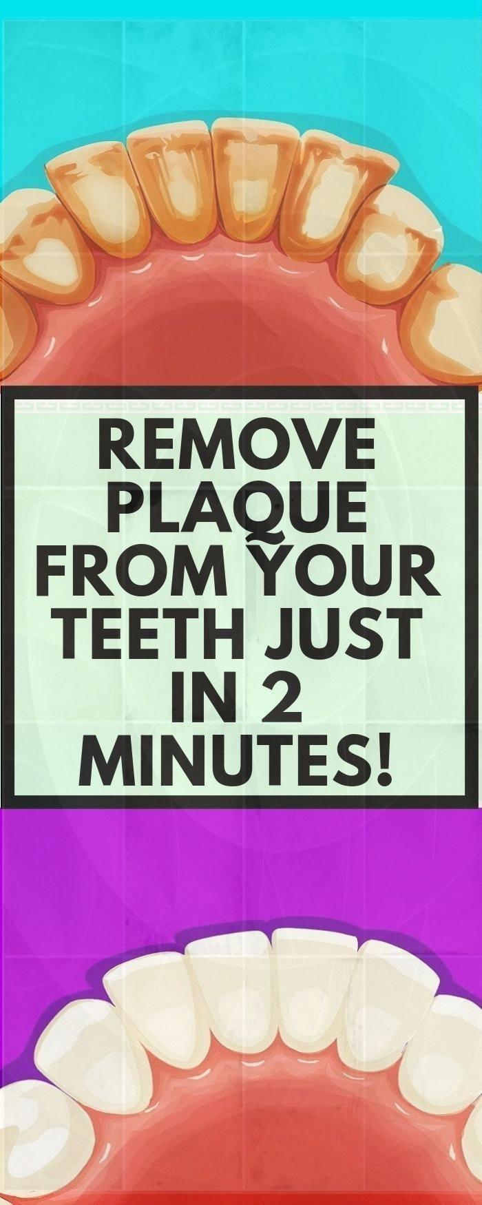 #bea #fitness #MINUTES #mouthwash #Page #Plaque #removes #Teeth This Mouthwash Removes Plaque From T...