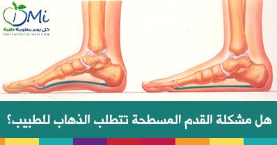 القدم المسطحة فلات فوت ما أسباب حدوث القدم المسطحة ومتى يجب غليك الذهاب إلي الطبيب Health