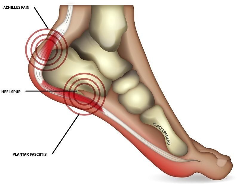 How Is Heel Pain Diagnosed Heel Pain Can Sometimes Be Diagnosed