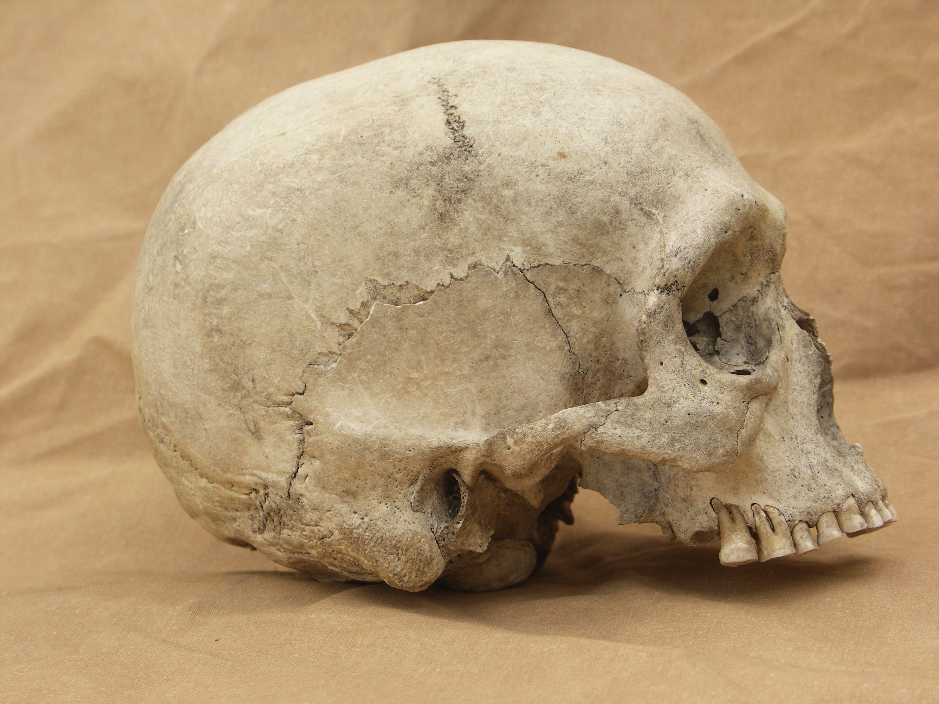 Hi Res Skull Side View