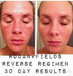 Sun damage is serious and can have lasting aging results! Our Reverse Regimen is totally amazing! http://lhudson.myrandf.com