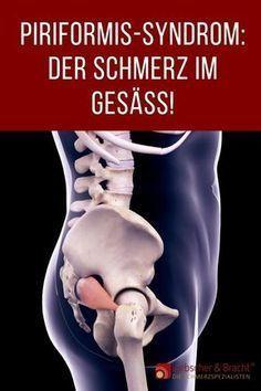 Photo of Piriformis syndrome: No more nerve-racking buttocks pain