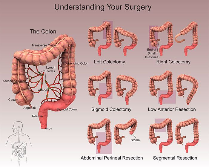 Diet After Colon Resection Surgery