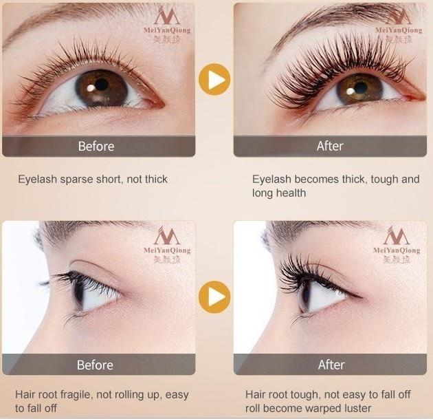 eb253db29c3 Herbal Eyelash Growth Treatments Liquid Serum Enhancer Eye Lash Longer  Thicker Better than Eyelash Extension Powerful Makeup #EyeLashesGrowth