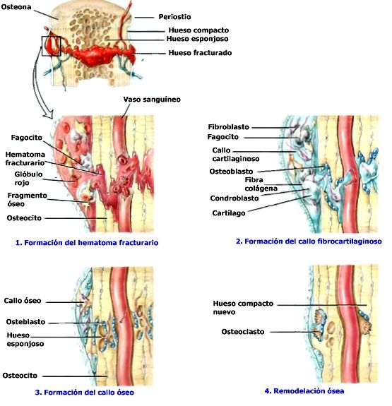 En las áreas cercanas al hueso sano bien irrigado, las células ...