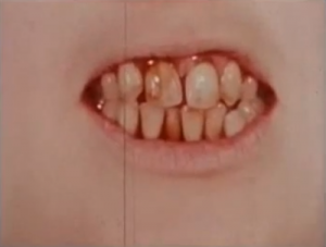 Unknown Unknown Series Teeth Aesthetic