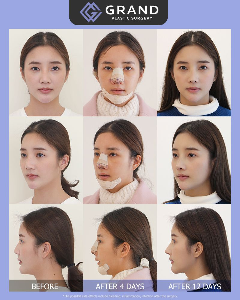 Pin by Jade on Face plastic surgery in 2019 | Face plastic