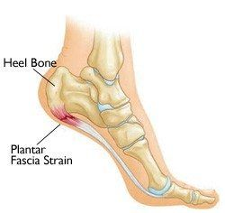 17+ How to Treat Plantar Fasciitis   Q&A with Tom Myers
