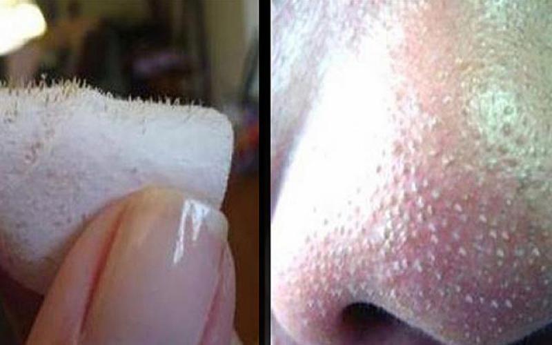 puistjes op neus verwijderen