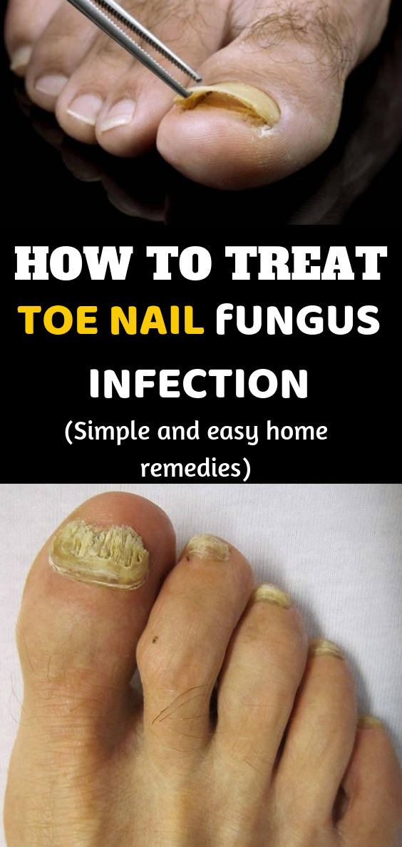 12 Simple Yet Effective Home Remedies For Toe Nail Fungus Cold