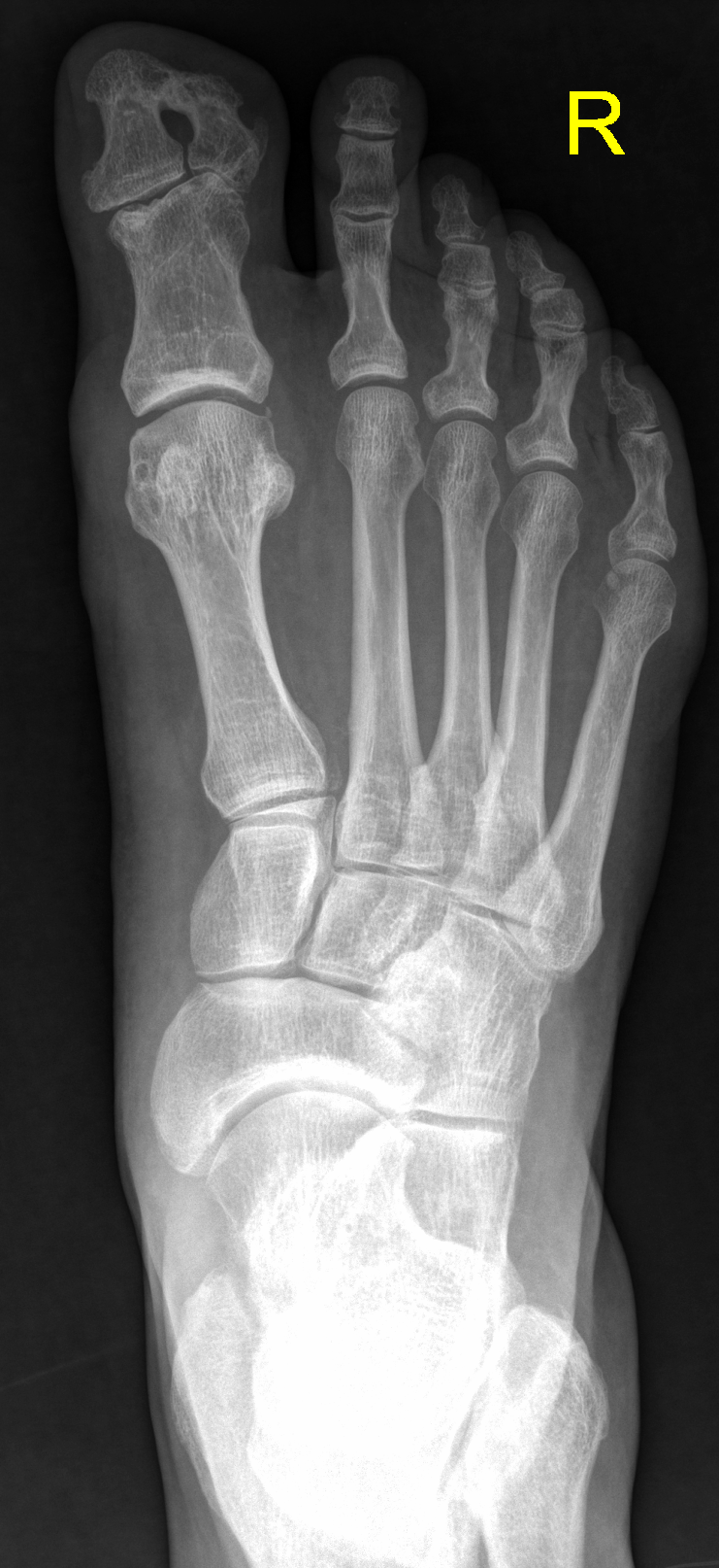 Duplicated distal phalanx of great toe (polydactyly) | Radiology ...