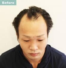広い 短髪 デコ