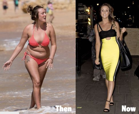 Charlotte Crosby Plastic Surgery Before And After Also Liposuction