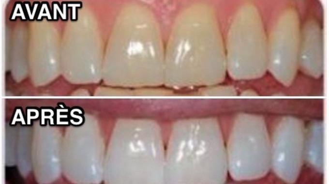 comment avoir des dents blanches en un rien de temps sant hygi ne beaut pinterest. Black Bedroom Furniture Sets. Home Design Ideas