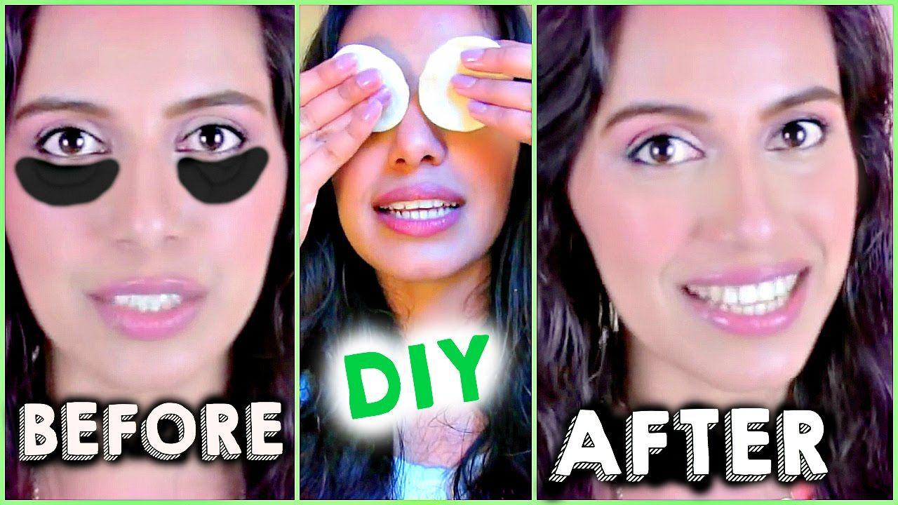 Diy how to get rid of dark circles under eyes fast using