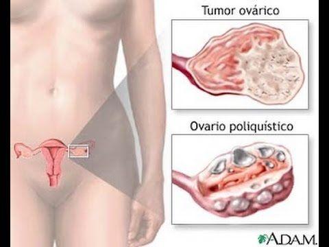 dolor de espalda y camarones en el ovario