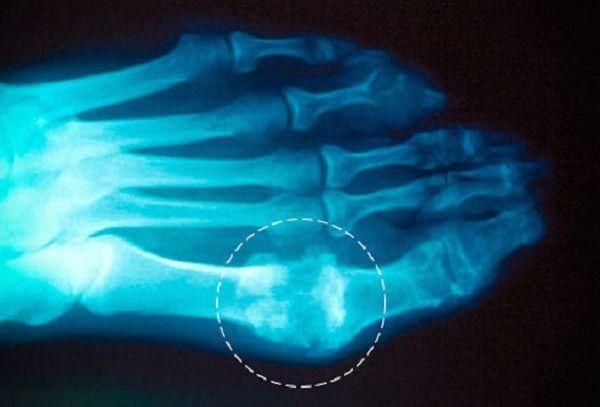 otthoni ízületi kezelés hogyan lehet kezelni az artrózist 1 evőkanál
