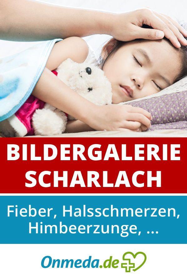 Bildergalerie: Scharlach | Kinderkrankheiten, Kinder ...