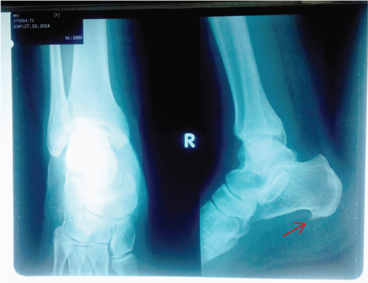 Treating Plantar Fasciitis Conservatively: Evidence-Based Case Report by Aamir Raoof Memon in MOJ Orthopedics & Rheumatology http://medcraveonline.com/MOJOR/MOJOR-01-00025.php