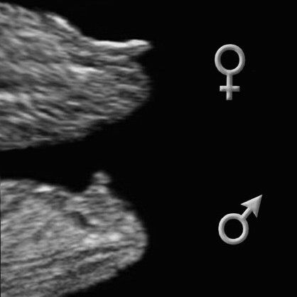 And That Makes Five Girl Ultrasound Pictures Ultrasound Gender Baby Ultrasound
