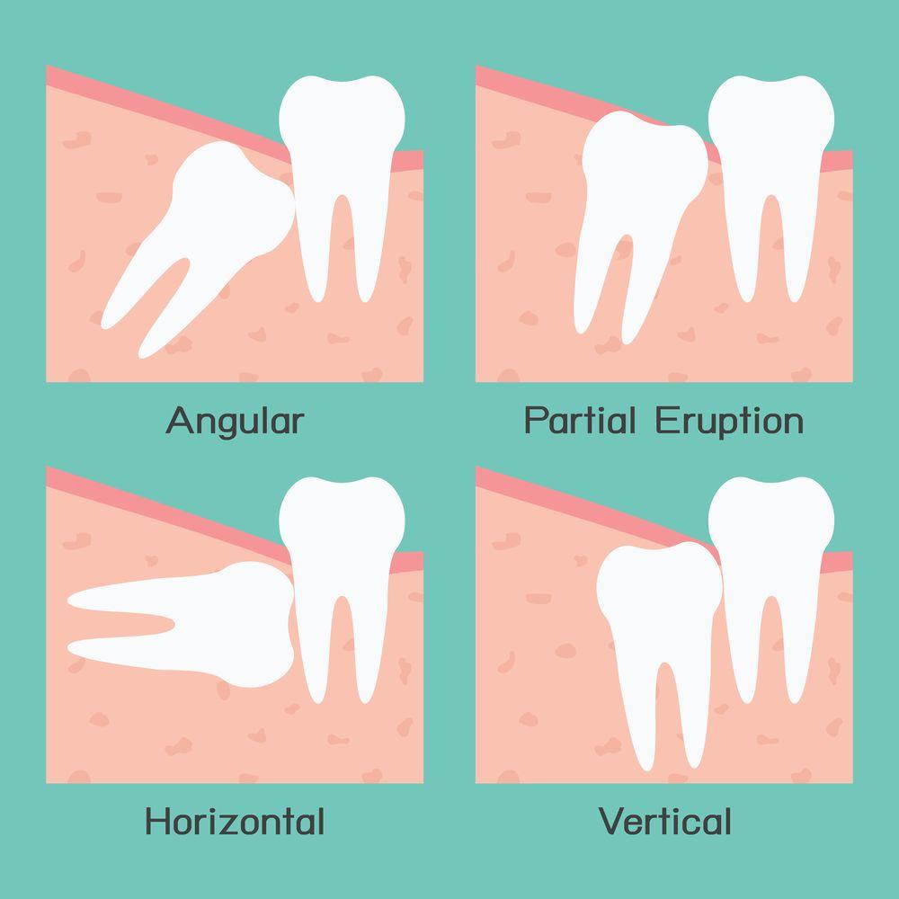 Chirurgie des dents de sagess dent de sagesse dentiste