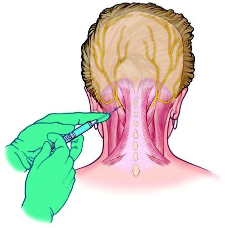 Occipital Nerve Block May Offer Relief for Stubborn Migraine Pain