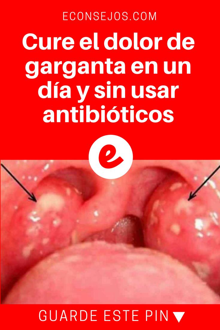 Alivia El Dolor De Garganta En Un Día Y Sin Usar Antibióticos Health And Nutrition Natural Medicine Juicing For Health