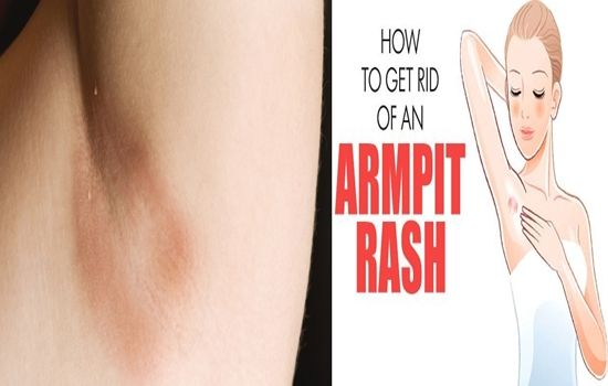 88e9fa941a08ca2b63c7a0b7776efee7 - How To Get Rid Of Sweat Rash Under Arms