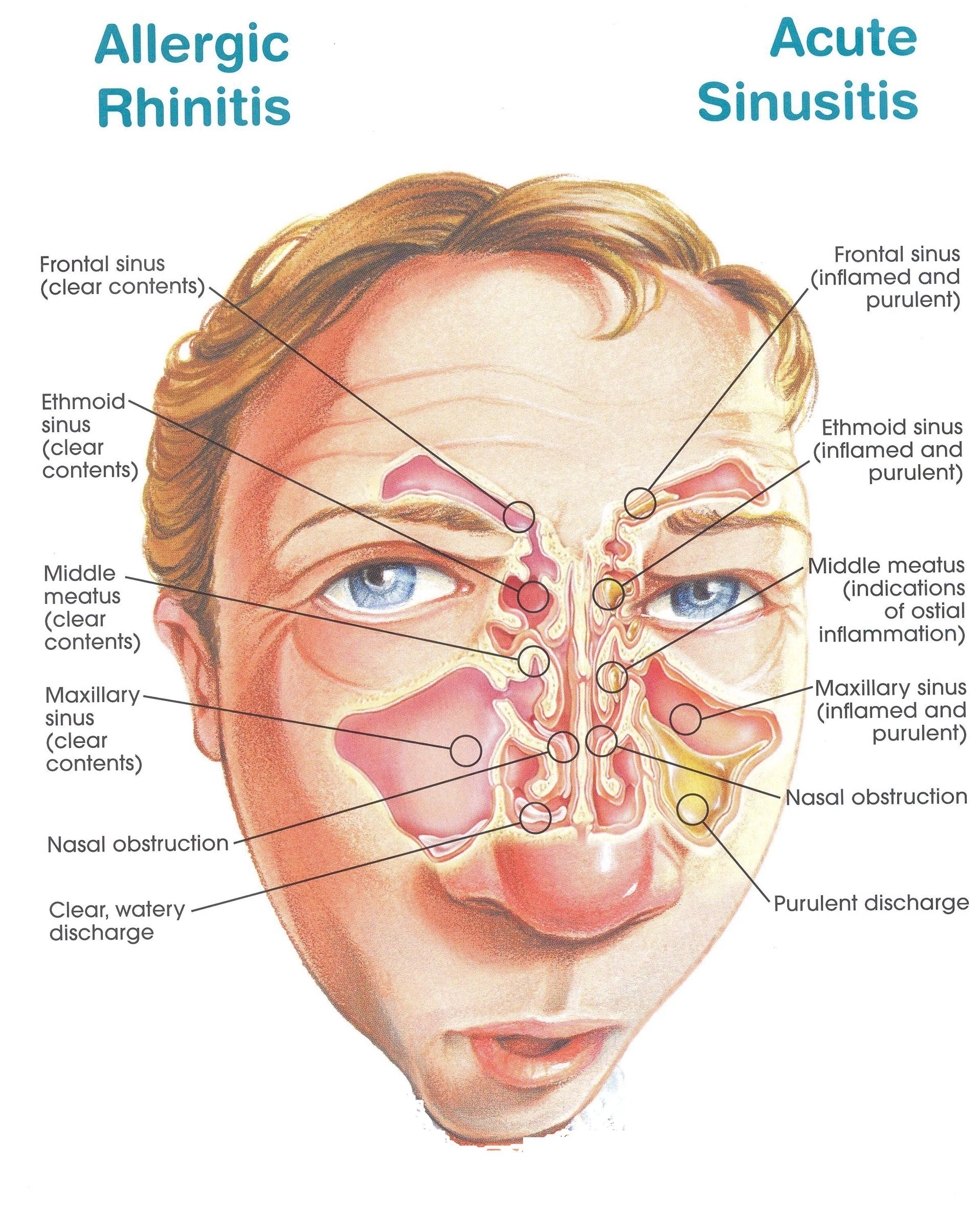 Natural Treatment Sinusitis Symptoms