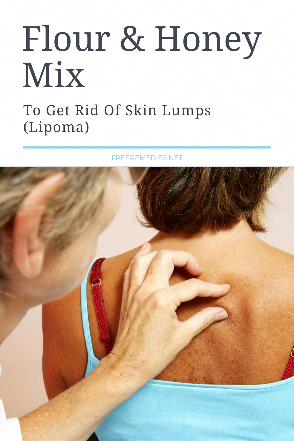 How To Get Rid Of Lump On Back Of Head
