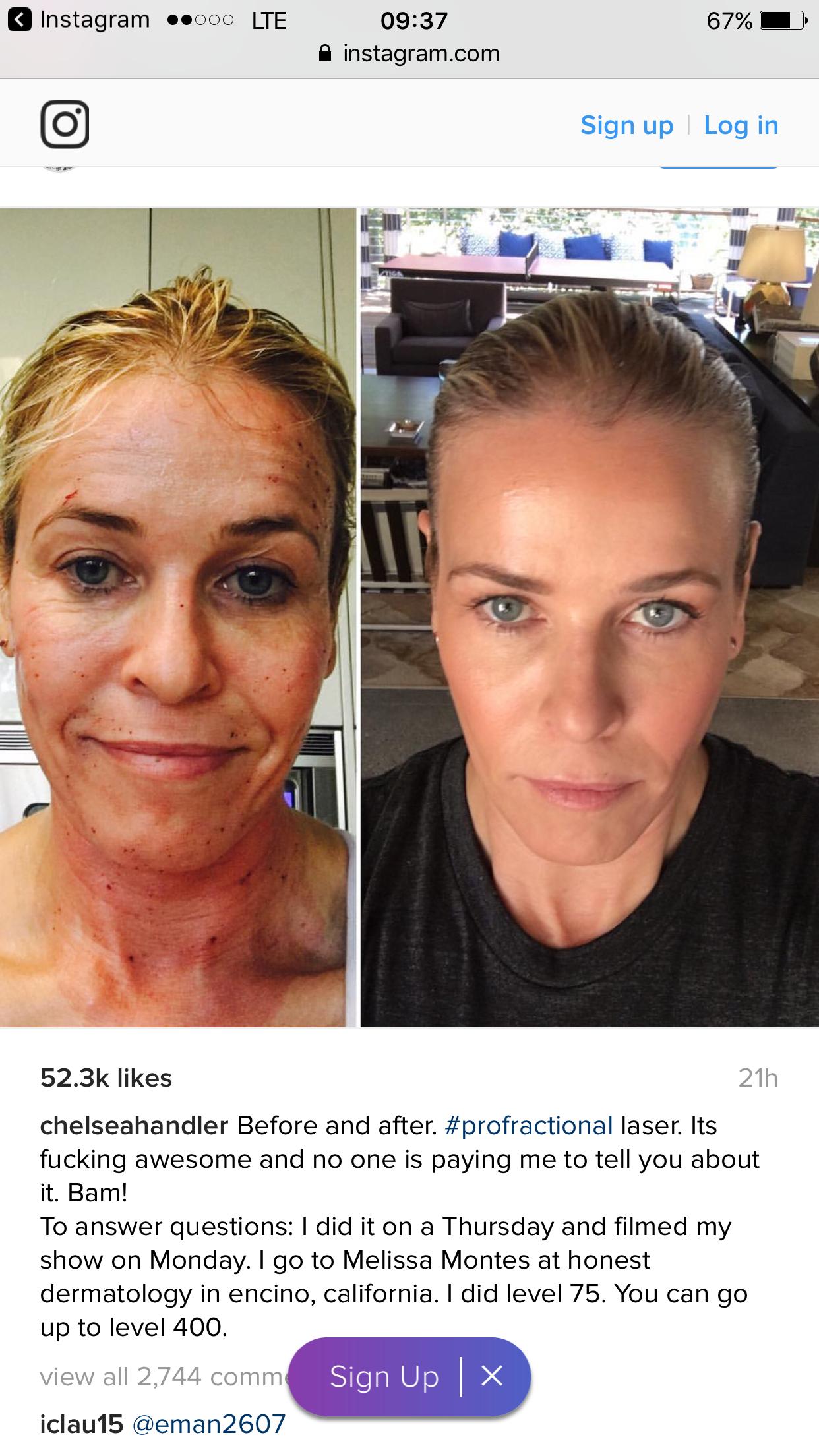 Profractional laser! Laser skin treatment