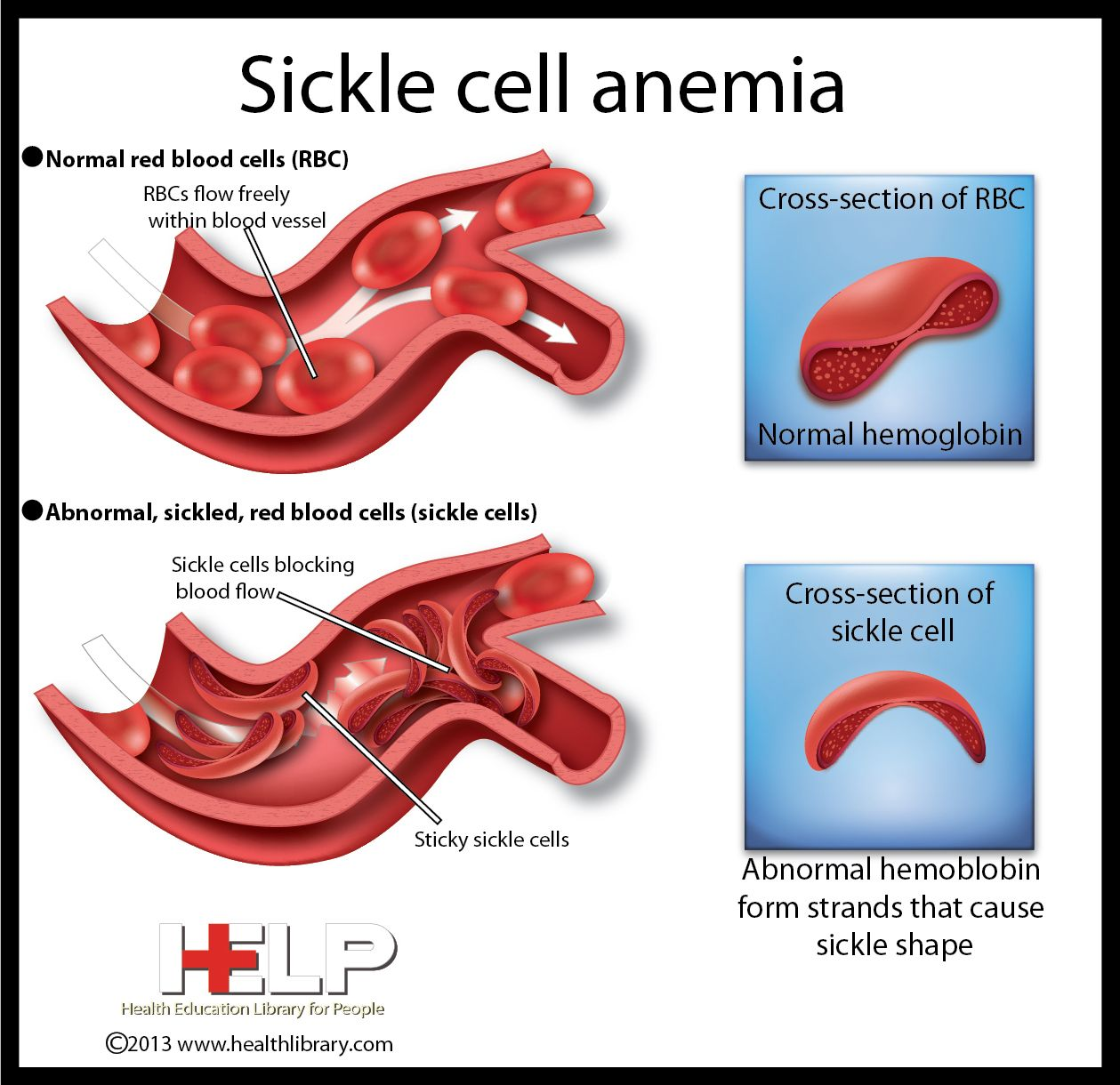 Sickle Cell Anemia | Hematology | Pinterest
