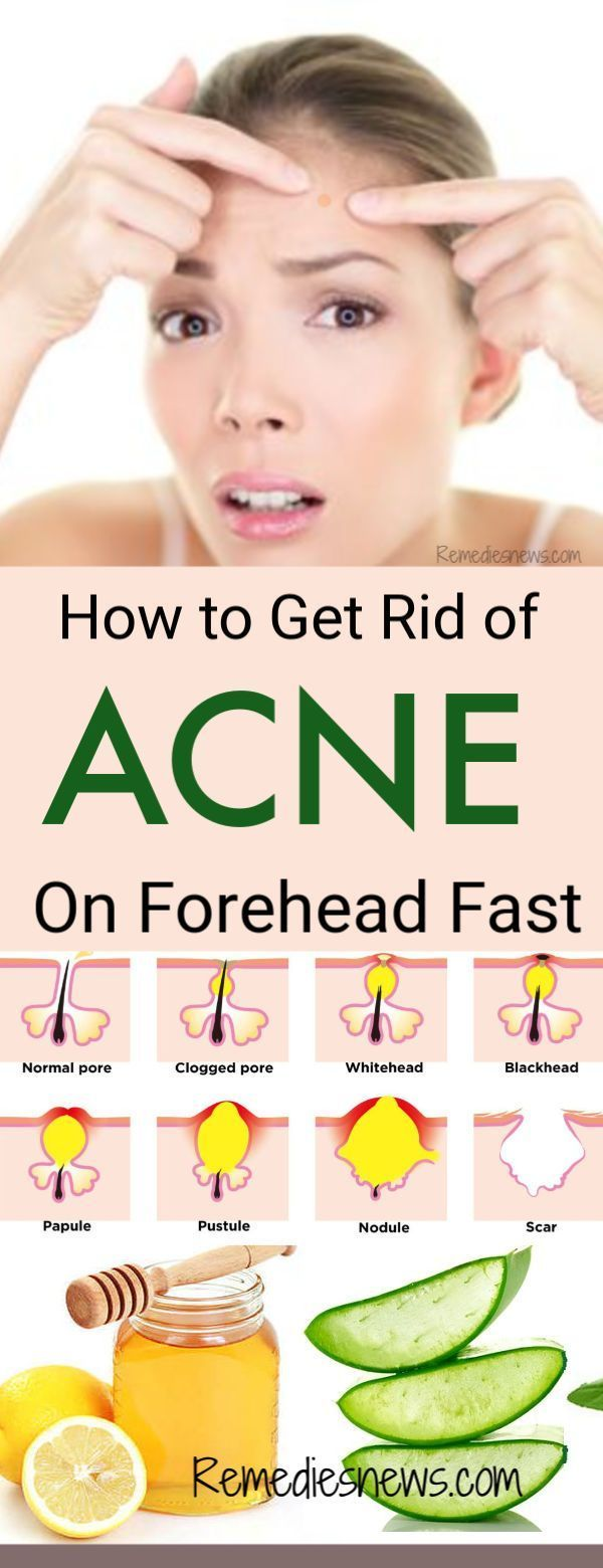 How To Get Rid Of Pimples And Pores Fast