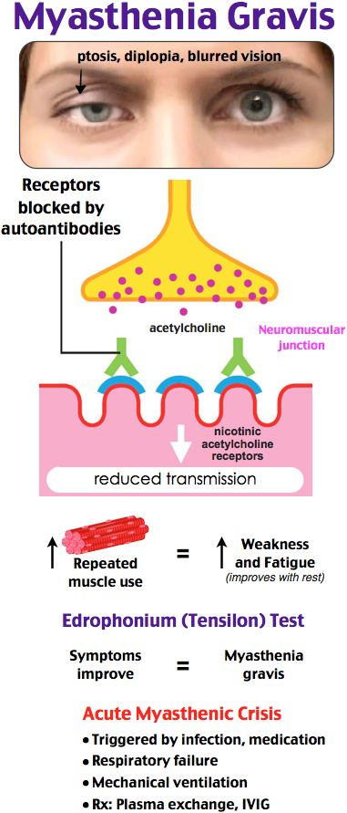 Autoimmune destruction of Ach receptors Proximal muscle weakness, ptosis, diplopia Sx with activity