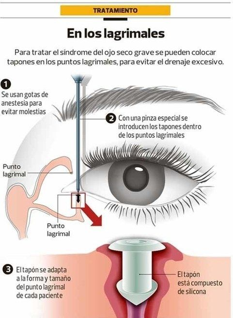 Las lágrimas son necesarias para humectar los ojos y para eliminar partículas que se hayan introducido en el. Una película lagrimal sana es necesaria para una buena visión,lubricación y asepsia de la superficie ocular. Los ojos secos se presentan cuando el sistema lagrimal se ve alterado por una disfunción o por la evaporación de lágrima.  Protocolo ojo seco:  http://opticaalomar.com/asesoramiento_83_9-protocolo-para-el-sindrome-del-ojo-seco.html#as    Gafa para ojo seco…