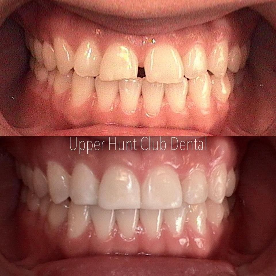 Before And After Invisalign And Composite Fillings
