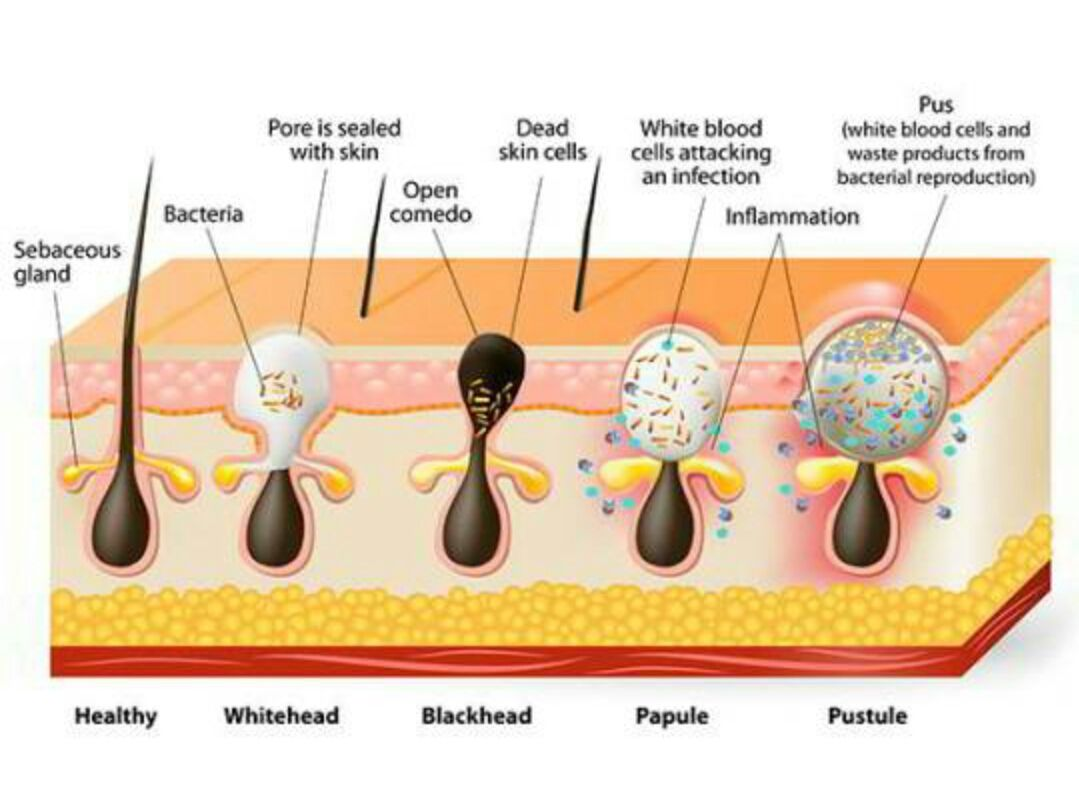 Diagram Of Acne Cyst - All Kind Of Wiring Diagrams •