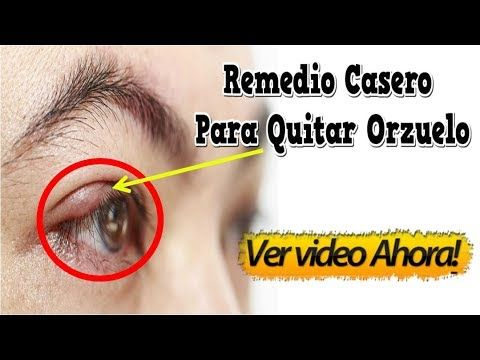 como se quita un orzuelo de un ojo