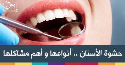 شاركنا بتجربتك مع حشوات الأسنان على هذا الرابط و اكتشف أهم أنواع حشوات الأسنان و كيفية الحفاظ على حشوة الأسنان لمدة أط Dental Cavities Cavities Dental Decay