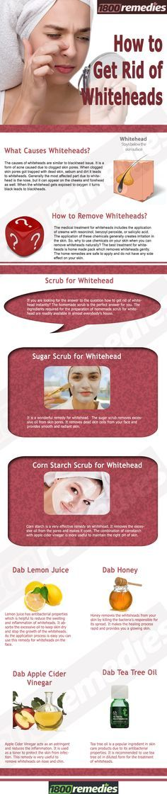 The best treatment for whiteheads is home made pack which removes whiteheads gently. The home remedies are safe to apply and do not have any side effect on your skin.