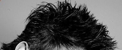 How to heal scalp eczema