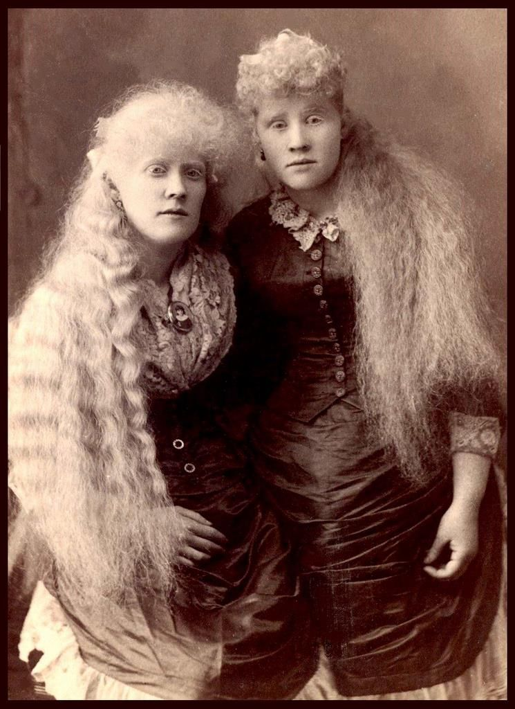 Florence and mary martin albino sisters who worked for pt barnum florence and mary martin albino sisters who worked for pt barnum of new york stopboris Image collections