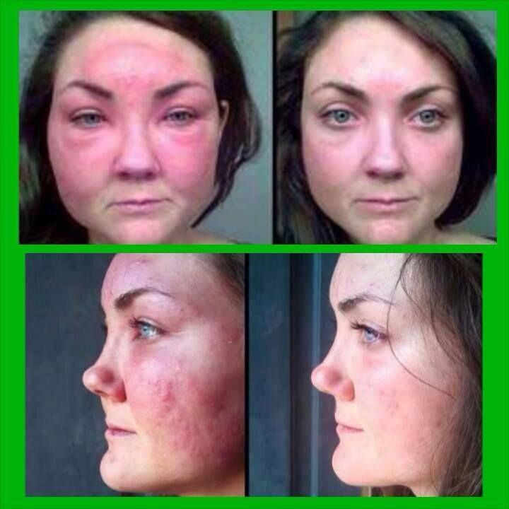 Holy Allergic Reaction Thank Goodness For Soothe Another Amazing Testimony Showing Soothe Is A Must H Rosacea Skin Care Rodan And Fields Soothe Peeling Skin