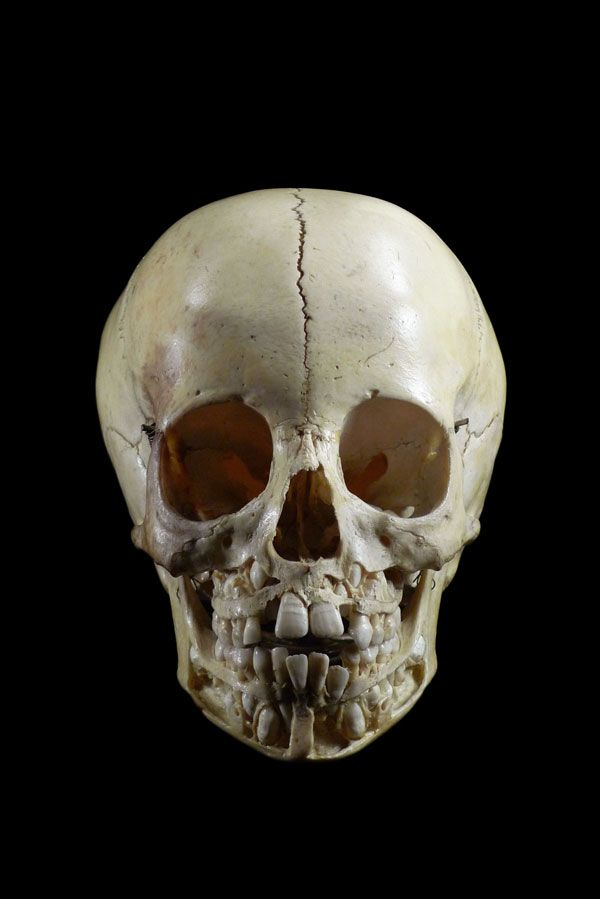 Photo: Child\'s skull before losing baby teeth | Cult of Weird ...