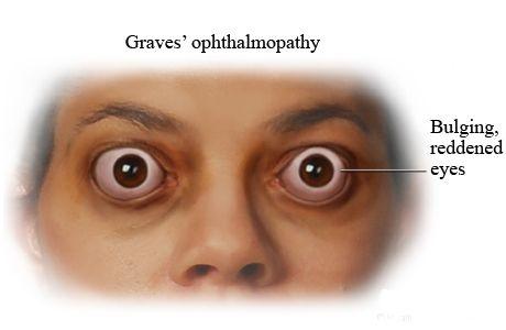 látás-helyreállító műtét kifejezés a hyperopia oka