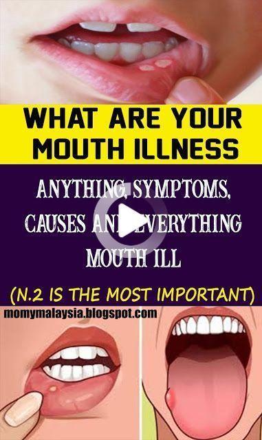 Top Reverse Cavities Choices - Healthy Medicine Ti