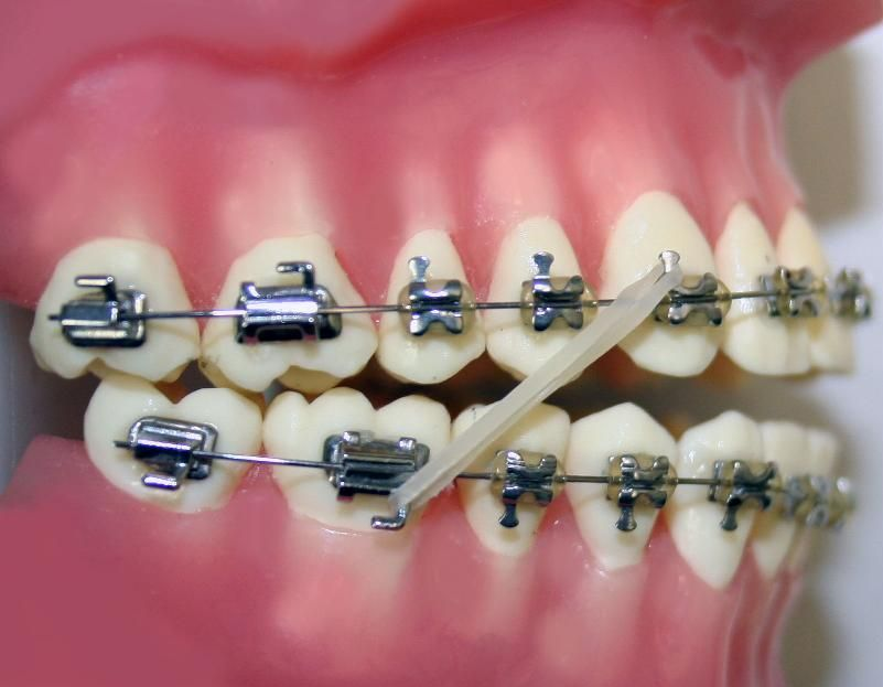 Elastics Rubber Band Worn By The Px Once The Teeth Are Aligned