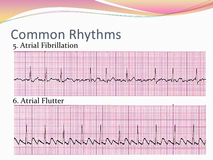12 Lead EKG Interpretation AFIB AFLUTTER Reading EKG/ECG | I